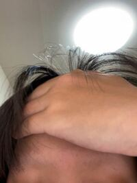 眉毛のことについてです。 高校3年生なんですが、6月に(就職や、大学進学のための)証明写真を学校で撮るみたいです。 その際、前髪をピンで止めて、おでこと眉を必ず出すようにいわれました。 私は、抜毛症で眉毛...