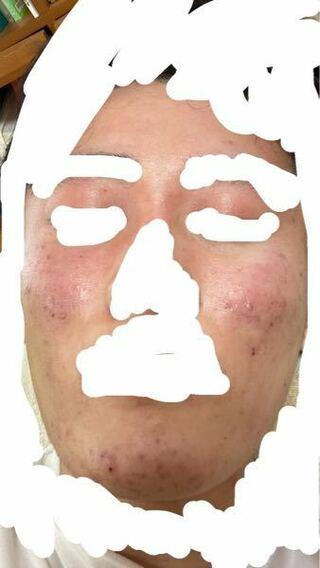 顔に塗る ヒルドイド