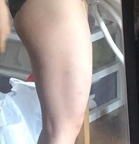 通常時でこのような形なのですが、 この前腿はなんですか???! どうやったらほそくなりますか?