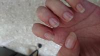 ピンク色の部分がとても少ない爪です(。´Д⊂)これでもよくなったほうなんですが、これ以上ピンク色の爪は伸びないでしょうか?キューティクルオイルは塗っていますm(。≧Д≦。)m!