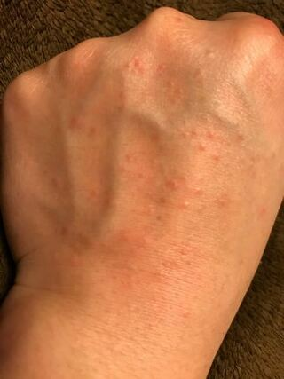 湿疹 手の甲