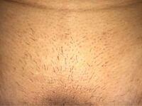 医療脱毛をして2週間です。Vラインなんですがこれは商社漏れですか?