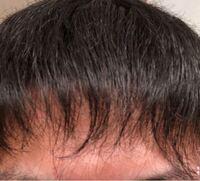 高校生です。 床屋に行き髪を梳いてもらったのですが3週間ほど経ったあたりから画像のような前髪になってしまいました。 伸びるには何ヶ月くらい必要ですか? あと、市販の亜鉛のサプリを飲んだら髪伸びるの早く...