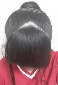 中1女子です! 普段ポニーテールをしていてかなり引っ張って縛っているのですが、 この前髪の分け目はハゲと言いますかね? また、この先、この髪型を続けるとハゲになりますかね? 遠慮無 く言ってください! 回答、お願い致します( ノ_ _)ノ