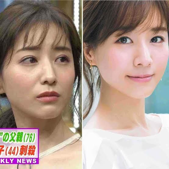 田中みな実さん今の顔と昔の顔どちらが好きですか? どちらでも可愛いですが、目がかなり変わりまし...
