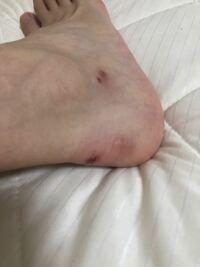 パンプスでの靴ずれ 女の子だしかわいいパンプスを履いてオシャレしたいのに、1日も履いてられず血だらけになってしまいます。 今まで3足ほど新しいもので試しましたが、どれも怪我してしまい履けなくなってしま...