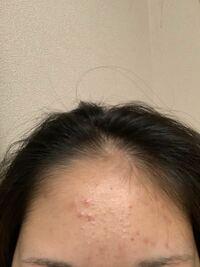 おでこの生え際の真ん中あたりだけ毛が無く、薄く、はげています。一部だけ毛を濃くしたり増やしたりすることは可能ですか?可能ならその方法を教えていただきたいです。肌荒れで汚くてごめんなさい。