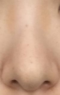 鼻整形を考えています。 私の鼻は少し団子鼻だと思っているのですが、鼻の軟骨を締める鼻尖形成だけや、鼻先にメッシュ(?)を入れるだけでは、あまり変化が感じられないのではと考えています 。このような場合は、3D形成をした方が効果が得られるのでしょうか。それとも鼻先にメッシュ(?)を入れるだけでも効果が出るのでしょうか?