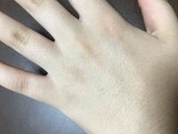 手の毛穴が生まれつきひどいです。 人前で手を出すのが恥ずかしいです。 ハンドクリームを塗るなど、保湿系は試しましたが効果なかったです。 すこしでもよくなる方法ありませんか? 脱毛と かすれば目立たな...