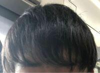 くせ毛が嫌で仕方ありません(男です) 治したいと思い縮毛矯正に行こうとしてます その中でいくつか疑問があるので相談に乗っていただけたら嬉しいです   疑問 1.縮毛矯正は全体のほうがいいか、部分的なのがいいか 2.仮に前髪に縮毛矯正をやるとしたら3ヶ月後くらいには元に戻ってしまうのか 3.縮毛矯正をやったらいくら寝癖がたってもくせ毛にならないか 4.仮に全体に縮毛矯正をやったら伸びたところを...