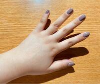 最近ダイエットを始めた20代です。自分の手がムチムチしていてコンプレックスです。ダイエットをすればこのムチムチの手と手首も細くなりますか?