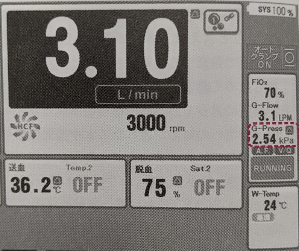 ECMOでPO2の調節は酸素濃度、PCO2の調節はガス流量と血液流量ですると聞きました。 それぞれ