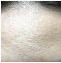 おでこの 毛穴とシワについて悩んでいます 通常の深いシワというよりは細かいのが連なっている感じなのです。ここ1年で少しずつ出てきました ニキビはそれほどなく 乾燥肌だと思います。。 アトピーではないと...