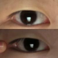 目尻切開について質問です。 目尻切開をしたいと考えているのですが、人によっては変化が感じにくいと聞きました。隠れている白目の部分が広ければ効果が感じやすいとあったのですが、私の目は 隠れている白目の部分は広いと言えますか?上がなにもしていない目、下が引っ張った目です。