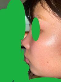横顔について質問です。 これは口ゴボでしょうか。 そして、Eラインはありますか?