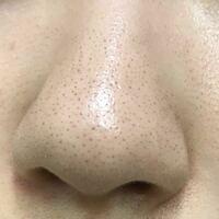 (( 閲覧注意!汚いです )) 鼻の黒ずみ、顔全体のうぶ毛の改善方法を教えて頂きたいです。  現在は、夜にビオレのマッサージ洗顔ジェル、週1でSuisaiの酵素洗顔、メラノCCの化粧水と美容液、ニベアで蓋をしていま...