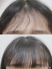 元々天然パーマでこの表面の前髪はまだあまりうねりませんが、この一つ下の層がくねくねしていて、これでも濡らしてブローしました。 湿気が酷い時はもううねうねです。 前髪が悩みなので縮毛矯正をしようと思うのですが、縮毛したらこの天パのうねうねも表面も髪が真っ直ぐになりますか?するべきでしょうか、