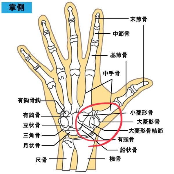 左手の親指の付け根辺りが痛いのですが捻挫でしょうか? 画像の丸で囲んだ辺りです