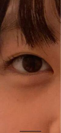 瞼が重い奥二重はどう二重の癖付をしたら良いでしょうか。夜、癖付して朝外しても瞼が重すぎなのと浮腫みすぎてただ線の跡がついてる感じになります。アイプチも瞼が重すぎてすぐ奥二重に戻ります。どうしたら良...