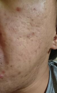 何が原因でこんな肌になってしまうのでしょうか? 改善方法よろしくお願いいたします。
