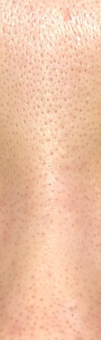 ⚠️集合体恐怖症の方は見ない方が良いです。 これは眉間の写真です。毛穴の黒ずみを改善するためにいろんな事を試しました。ですがもう正直何をすれば良いかわかりません。鏡を見ると泣けます。 頬もこのような調...