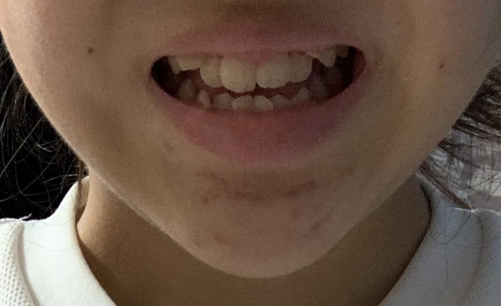 写真付きです。(閲覧注意) 私は写真を撮る時、いつも口を閉じてるので後から写真を見返すと1人だけすごい真顔みたいに思われます… 友達にも写真撮る時あんま笑わないよねと言われるのですが、 私笑うと顎が伸びるし歯並びもすごい汚いんです。同じコンプレックスの方いますか…? でもせっかくの写真歯出して笑顔で撮りたいんですけどもうほんとそうすると自分がブスすぎて… 矯正もしたいけど高額で簡単にはできないし…