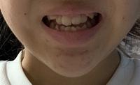 写真付きです。(閲覧注意) 私は写真を撮る時、いつも口を閉じてるので後から写真を見返すと1人だけすごい真顔みたいに思われます… 友達にも写真撮る時あんま笑わないよねと言われるのですが、 私笑うと顎が伸びるし歯並びもすごい汚いんです。同じコンプレックスの方いますか…? でもせっかくの写真歯出して笑顔で撮りたいんですけどもうほんとそうすると自分がブスすぎて… 矯正もしたいけど高額で簡単にはでき...