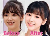 Nizi projectというオーディション番組で結成されたNiziUのミイヒちゃんというメンバーがオーディション期間中に歯科矯正したのですが、たったの一年ほどで、しかもオーディション期間中は歯にブラケティングなど...