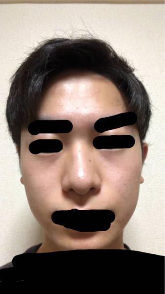団子鼻でいじられます これを治して鼻筋のある鼻にするにはどーすればいいですか 整形の仕方でもいいです
