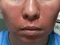 9月16日18時にダーマペンをクリニックで施術してもらいました。  9月18日20時の写真です。 施術後と変わらず真っ赤です。 顔の皮がむけてきて、お風呂上がりに  アルコールフリーの化粧水を塗りましたが  すご...