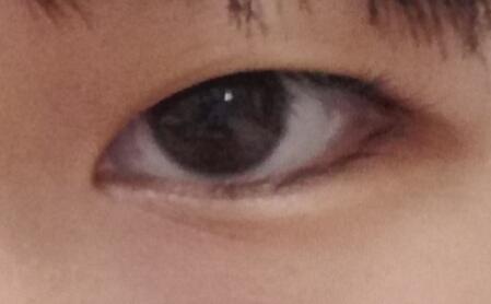これって三白眼ですか? ⚠汚い目ですみません(;_;)