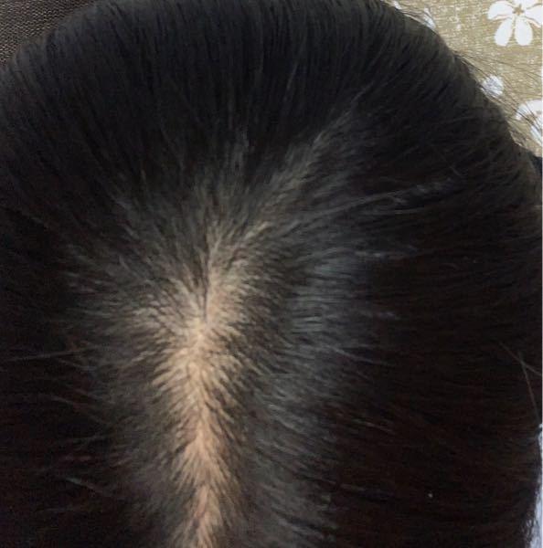 高1の女子です。最近お風呂での抜け毛がひどくこのままいくと将来禿げてしまうのではないかと不安です。抜け毛の中には細い毛もあります。ですが枕元には全く髪の毛は落ちていません。これは病院行った方がい...