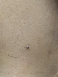 一つだけ大きな黒い毛穴があります。 治すにはどうしたらいいでしょうか。なかなかきえません。 爪でとったらもっとひどく残ったりするのでしょうか