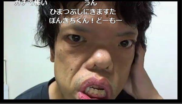 この方は水頭症と顔面神経麻痺を患っており、生まれつき顔がこのような状態です。 保険適用で口等を整形することは可能でしょうか。