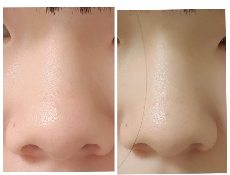 これはだんご鼻ですよね? あと、どこをどう整形したら綺麗になると思いますか?