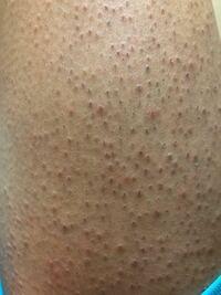 これは毛嚢炎ですか??1週間前に脱毛サロンに行きました。1回目です。