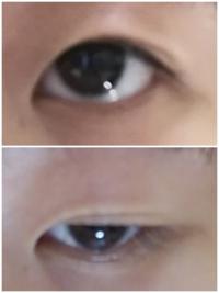 瞼が伸びるという状態がよく分かりません。 最近アイテープを癖付けのために夜だけやっているのですが瞼が伸びているか心配になりました。 しかし瞼が伸びている状態とはどのようなものが分かりません。 そこで下...