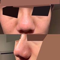 【画像あり】鼻が異常に大きくて、コンプレックスです。 10代、男子大学生です。自分の鼻は異常に大きいです。ネット上にある鼻の形の分類のどれにも当てはまらない気がします。よく『眼鏡とセットの鼻のおもちゃ』みたいといわれます。整形などで変わるものですか?