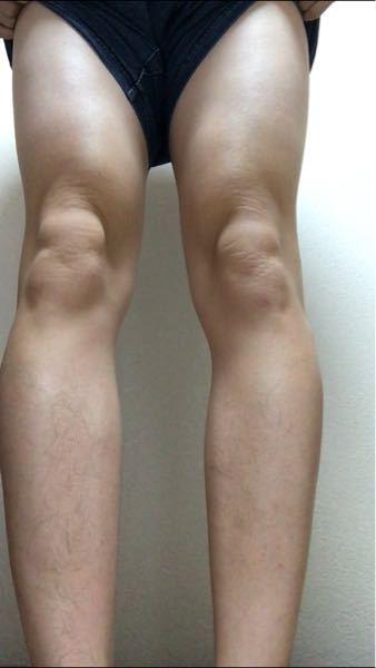 脚の形気持ち悪いんですけどなぜでしょうか? 陸上短距離やってます。