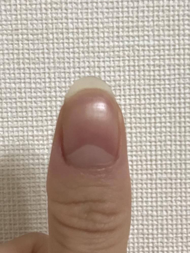 この爪の形は変ですか?