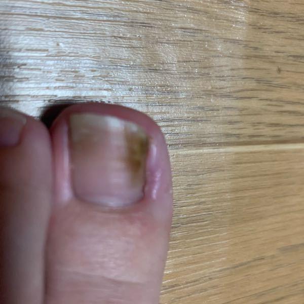 汚い写真すみません。。 私は巻き爪で腫れるたびにテープなどでなおしていて、今また巻き爪で腫れているのですが爪の中の 黄色?黒ずんだこの右側のはなんですかね、、。 割と前からある気がします(;_;)