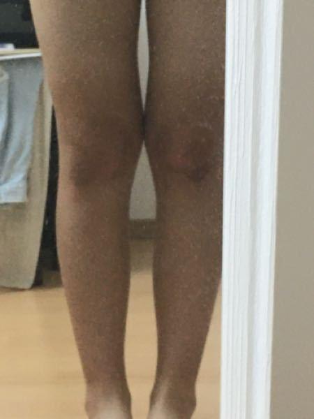 写真ありです!! 膝の横の出っ張り??が全く痩せなくてずっと悩んでます(><) 触ってみると骨があり、骨格的な問題だと思ってます ここはやはり骨格の問題で痩せることは難しいですか? もし