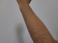 中学でこの腕毛は気持ち悪いですよね… 処理した方がいいのでしょうか? というか、中学でこんなに生えるものなんでしょうか笑