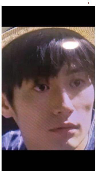 カネ恋3話の三浦春馬さんの顔痣は、いつ出来たと思いますか? 顔を動かしていた間も目の下が黒かっ...