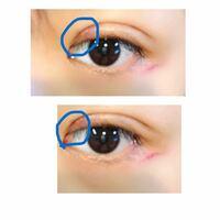 眼瞼下垂の手術したのですが もともと奥二重なので、三重にならないかとても心配です  これ三重ですかね!?(´;ω;`) うまいこと、線がこれから遅れたりの線と合流することを願ってますが、、 末広と平行の中間くらいにお願いしたのですが 広すぎるので、最悪再手術をして末広二重にしようか悩んでます(><)