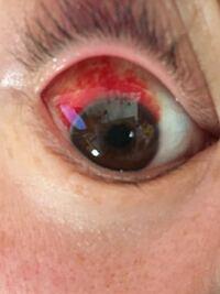 昨日の夜から眼球出血してます 初めてなのでわからないのですが病院行った方がいいのでしょうか?