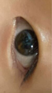 埋没でこの蒙古襞と、瞼で並行二重にすることは可能ですか?(麦粒腫で薬を塗っているので油が目立っていますすみません(><)