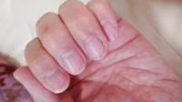 薬指の爪の黒い線は何でしょうか?