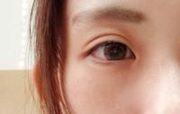 整形じゃないんですが、整形したみたいなハム目です 自然な二重にするにはどうしたらいいですか?
