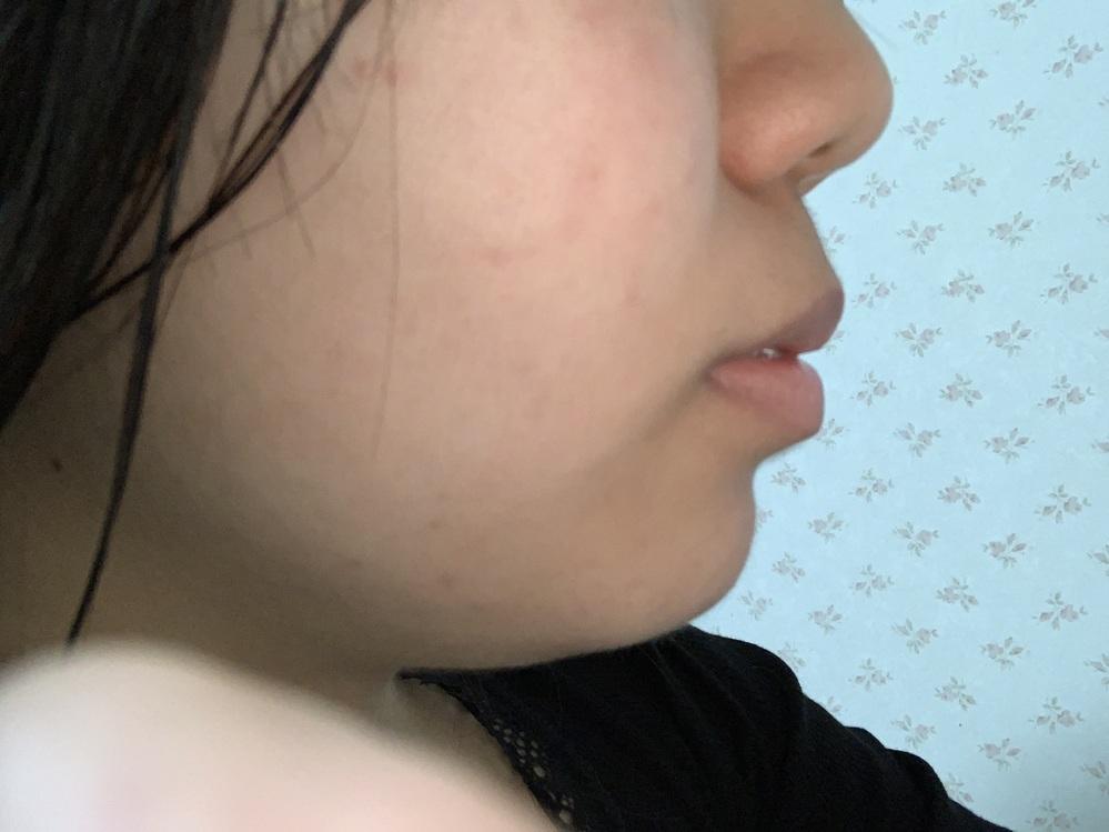 現在、上の歯を2本抜いて矯正しています。 この酷い口ゴボを治したくて、、、。 まだ隙間は5ミリほど残っていて隙間が埋まるのはこれからだと思うのですが、 口ゴボが治る気がしません。 矯正で口ゴボを...